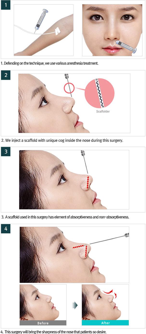 Ksamsung plastic surgery::